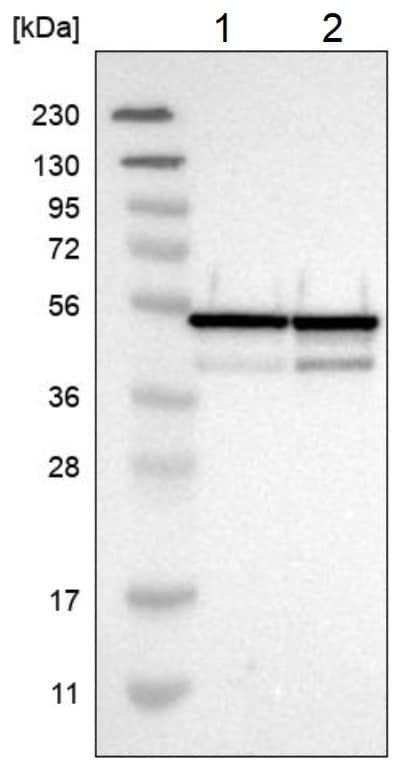 Western blot - Anti-NUDCD3 antibody (ab224415)