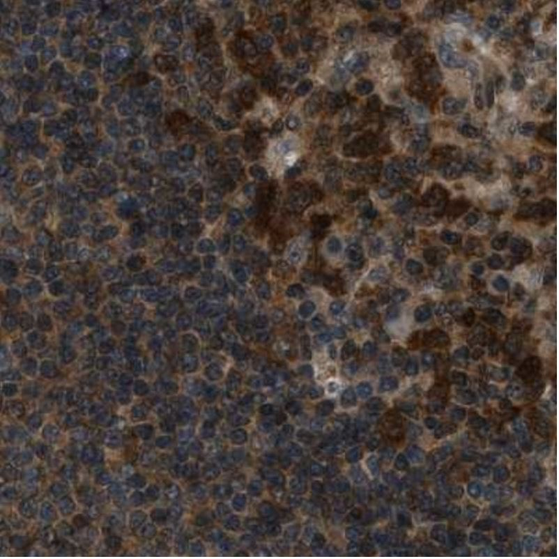 Immunohistochemistry (Formalin/PFA-fixed paraffin-embedded sections) - Anti-NUDCD3 antibody (ab224415)
