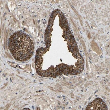 Immunohistochemistry (Formalin/PFA-fixed paraffin-embedded sections) - Anti-LPA-2 antibody (ab224419)