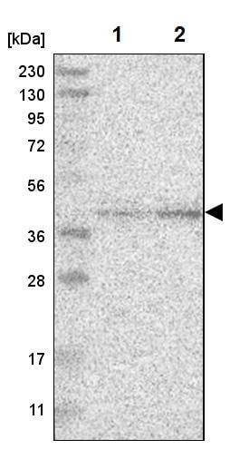 Western blot - Anti-CANT1 antibody (ab224420)