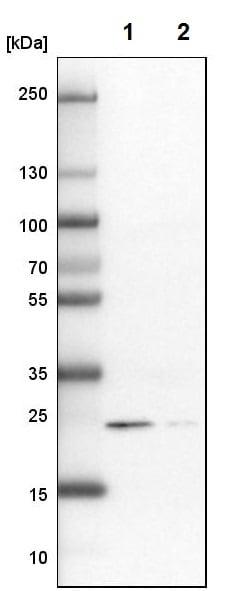 Western blot - Anti-RAB31 antibody - C-terminal (ab224421)