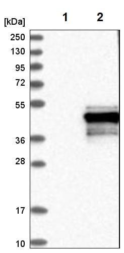Western blot - Anti-PPM1K antibody (ab224424)