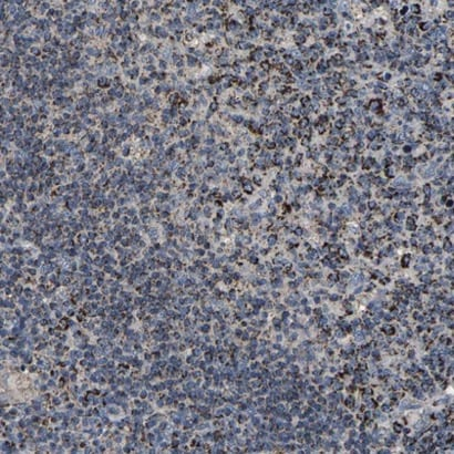 Immunohistochemistry (Formalin/PFA-fixed paraffin-embedded sections) - Anti-SHMT2/SHMT antibody (ab224427)