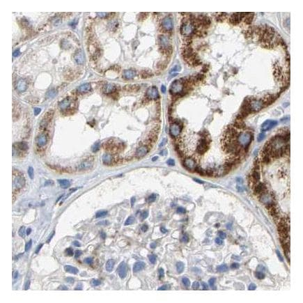 Immunohistochemistry (Formalin/PFA-fixed paraffin-embedded sections) - Anti-SHMT2/SHMT antibody (ab224428)
