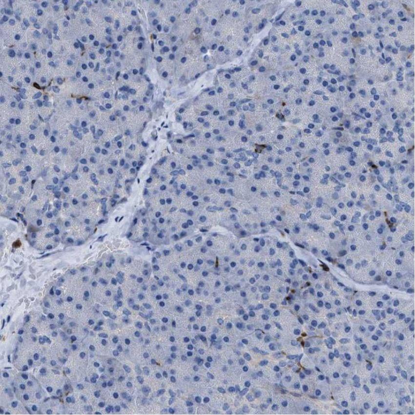 Immunohistochemistry (Formalin/PFA-fixed paraffin-embedded sections) - Anti-MATE-1 antibody (ab224440)
