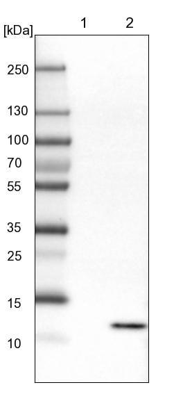 Western blot - Anti-RIDA antibody - N-terminal (ab224443)