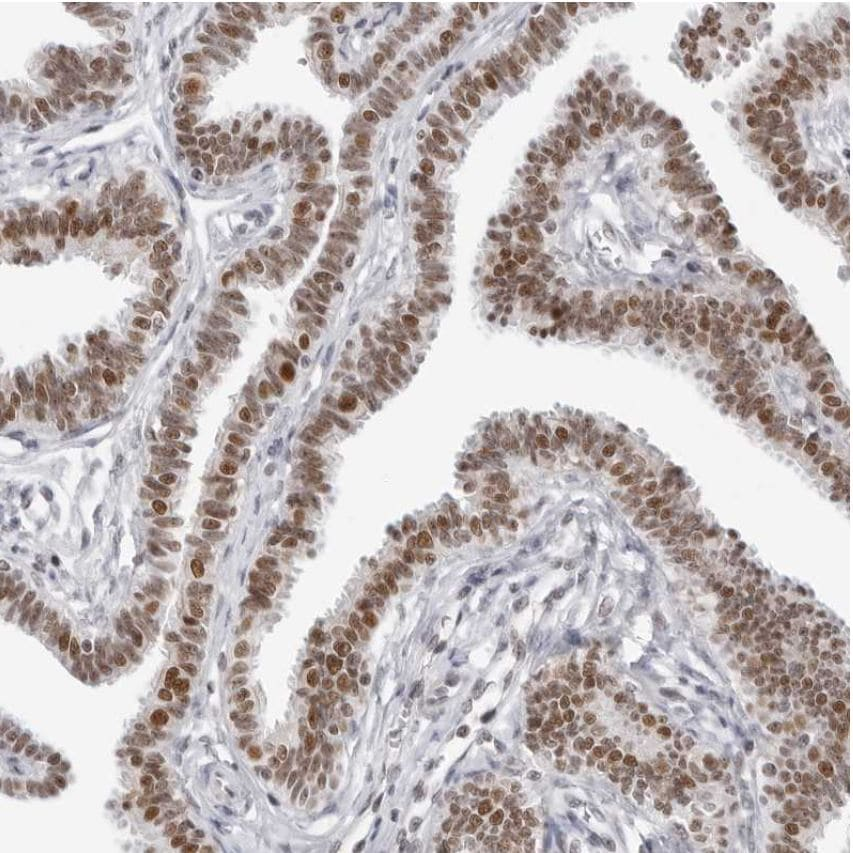 Immunohistochemistry (Formalin/PFA-fixed paraffin-embedded sections) - Anti-WDR79 antibody (ab224444)