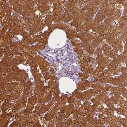 Immunohistochemistry (Formalin/PFA-fixed paraffin-embedded sections) - Anti-SHMT1 antibody - N-terminal (ab224445)