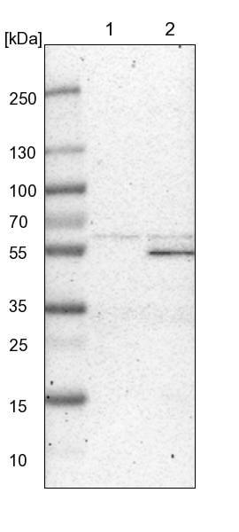 Western blot - Anti-ZFP38 antibody (ab224449)