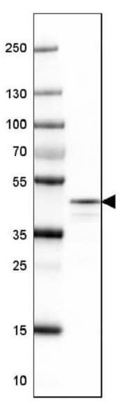Western blot - Anti-NECAB1 antibody (ab224450)