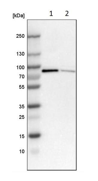 Western blot - Anti-Norbin antibody (ab224451)
