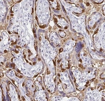 Immunohistochemistry (Formalin/PFA-fixed paraffin-embedded sections) - Anti-PAGE4 antibody (ab224454)