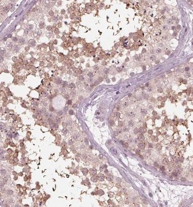 Immunohistochemistry (Formalin/PFA-fixed paraffin-embedded sections) - Anti-FAM154A/SAXO1 antibody - C-terminal (ab224455)
