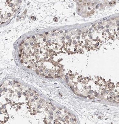 Immunohistochemistry (Formalin/PFA-fixed paraffin-embedded sections) - Anti-TDRD7 antibody (ab224462)