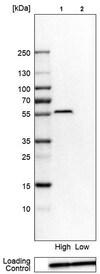Western blot - Anti-Migfilin antibody (ab224464)