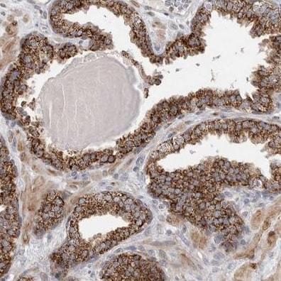 Immunohistochemistry (Formalin/PFA-fixed paraffin-embedded sections) - Anti-Rab18 antibody (ab224466)