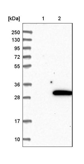 Western blot - Anti-Rab18 antibody (ab224466)