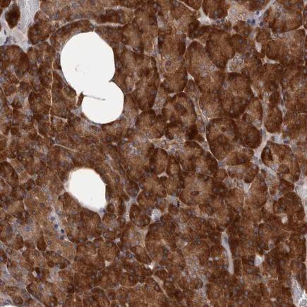 Immunohistochemistry (Formalin/PFA-fixed paraffin-embedded sections) - Anti-HBS1L antibody (ab224476)