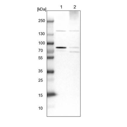 Western blot - Anti-HBS1L antibody (ab224476)