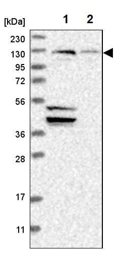 Western blot - Anti-Sec8 antibody (ab224484)