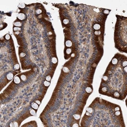 Immunohistochemistry (Formalin/PFA-fixed paraffin-embedded sections) - Anti-Sec8 antibody (ab224484)