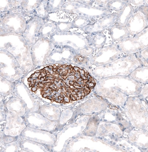 Immunohistochemistry (Formalin/PFA-fixed paraffin-embedded sections) - Anti-Synaptopodin antibody (ab224491)