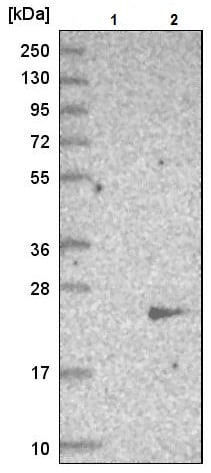 Western blot - Anti-SMCP antibody (ab224494)