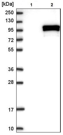 Western blot - Anti-CHSS2 antibody (ab224495)
