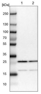 Western blot - Anti-CGGBP1 antibody - N-terminal (ab224497)