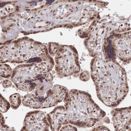 Immunohistochemistry (Formalin/PFA-fixed paraffin-embedded sections) - Anti-CGGBP1 antibody - N-terminal (ab224497)