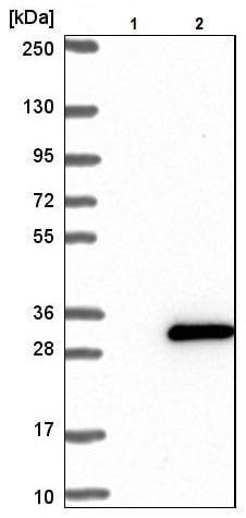 Western blot - Anti-HMGB4 antibody (ab224500)