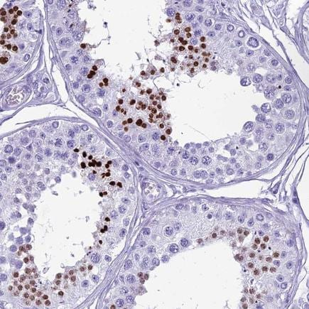 Immunohistochemistry (Formalin/PFA-fixed paraffin-embedded sections) - Anti-HMGB4 antibody (ab224500)