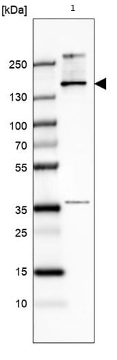 Western blot - Anti-TCOF1 antibody (ab224544)