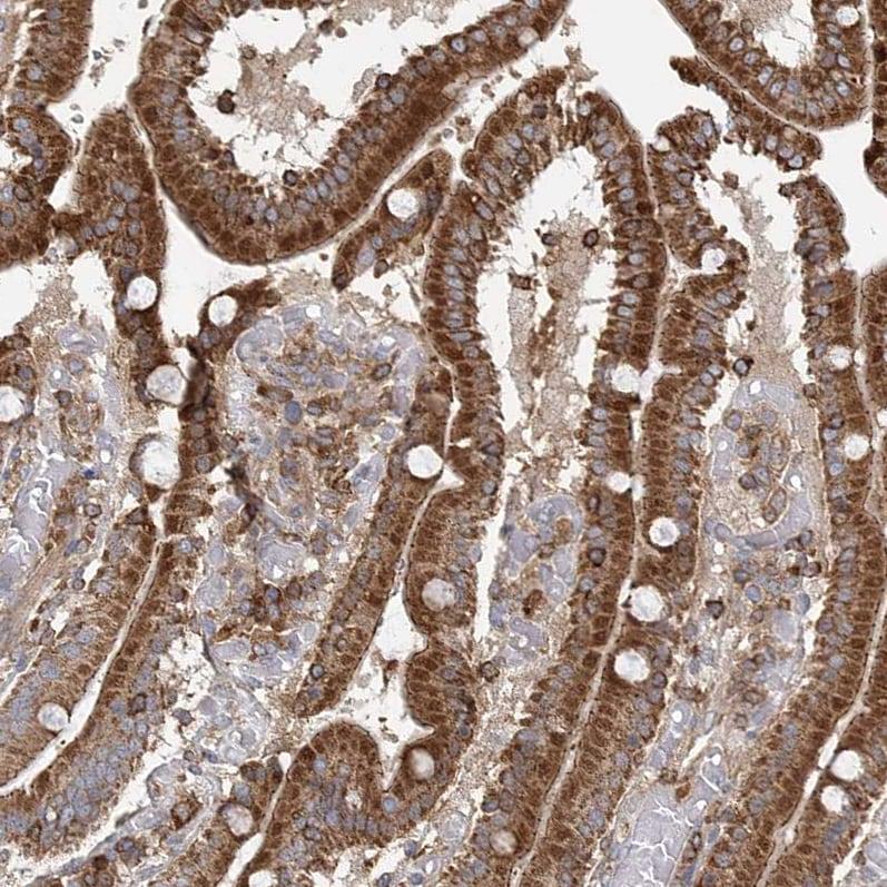 Immunohistochemistry (Formalin/PFA-fixed paraffin-embedded sections) - Anti-PLEKHA7 antibody (ab224548)
