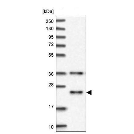 Western blot - Anti-MID1IP1 antibody (ab224550)