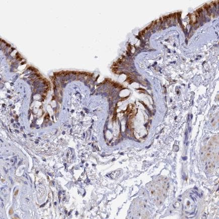 Immunohistochemistry (Formalin/PFA-fixed paraffin-embedded sections) - Anti-RPGRIP1L/FTM antibody (ab224551)