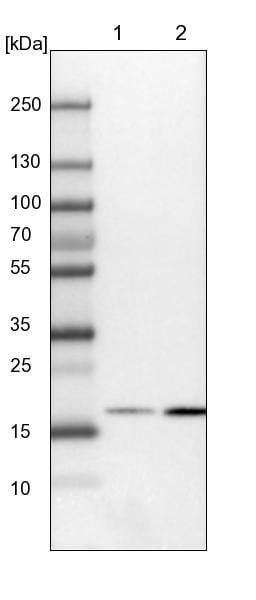 Western blot - Anti-RHOG antibody (ab224555)