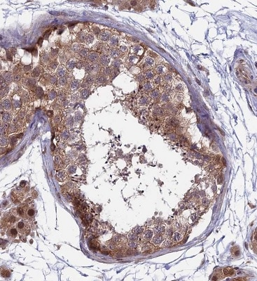 Immunohistochemistry (Formalin/PFA-fixed paraffin-embedded sections) - Anti-MAST205 antibody (ab224556)