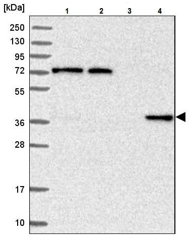 Western blot - Anti-C11ORF54 antibody (ab224558)