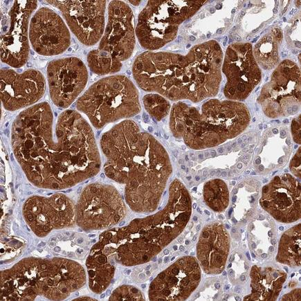Immunohistochemistry (Formalin/PFA-fixed paraffin-embedded sections) - Anti-C11ORF54 antibody (ab224558)