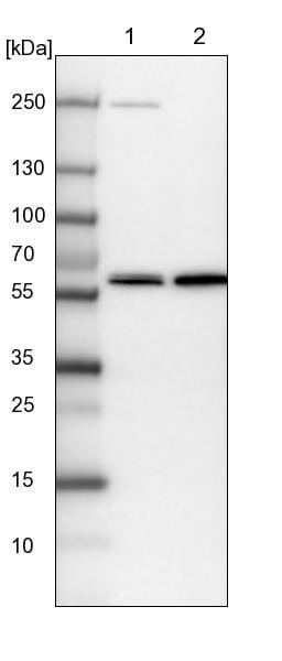 Western blot - Anti-C15orf44 antibody (ab224559)