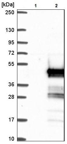 Western blot - Anti-C16orf48 antibody (ab224560)
