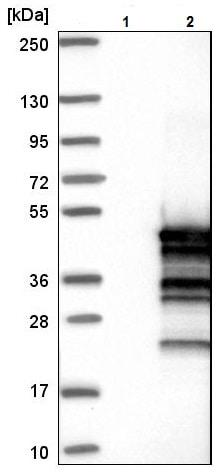 Western blot - Anti-C16orf48 antibody (ab224561)