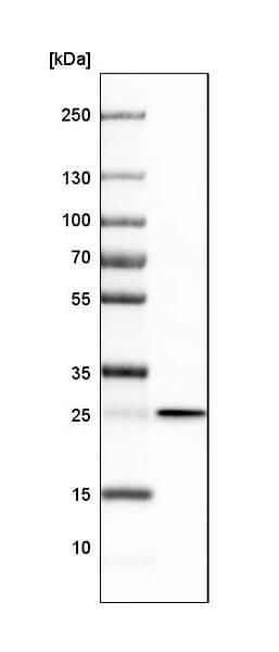 Western blot - Anti-MIC19 antibody (ab224565)