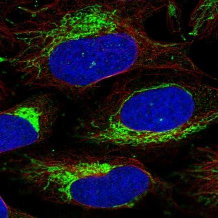 Immunocytochemistry/ Immunofluorescence - Anti-MIC19 antibody (ab224565)
