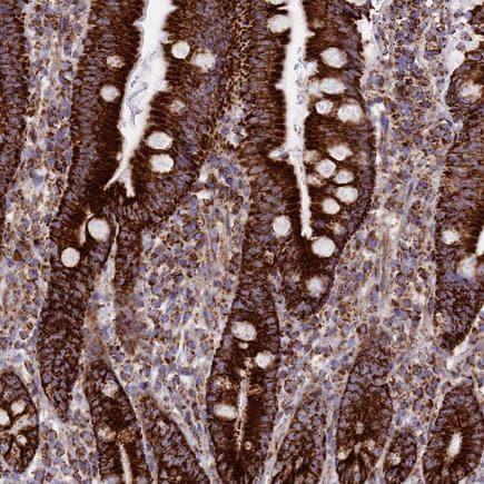 Immunohistochemistry (Formalin/PFA-fixed paraffin-embedded sections) - Anti-MIC19 antibody (ab224565)