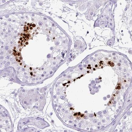Immunohistochemistry (Formalin/PFA-fixed paraffin-embedded sections) - Anti-TNP1 antibody (ab224567)
