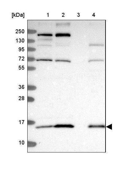Western blot - Anti-COX20 antibody - C-terminal (ab224570)
