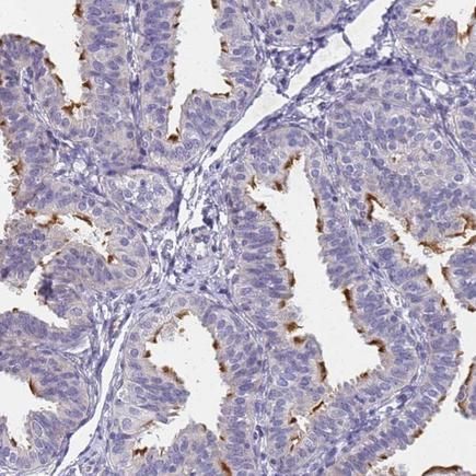 Immunohistochemistry (Formalin/PFA-fixed paraffin-embedded sections) - Anti-FAM166B antibody (ab224571)