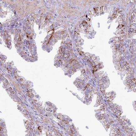 Immunohistochemistry (Formalin/PFA-fixed paraffin-embedded sections) - Anti-SLC7A14 antibody (ab224572)